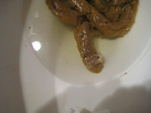 mucous in stool sample