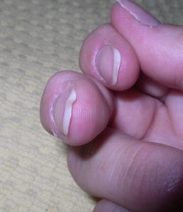 Fingernail Analysis 2